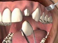 зубное протезирование в клинике Базель