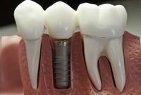имплантация зубов в клинике Базель